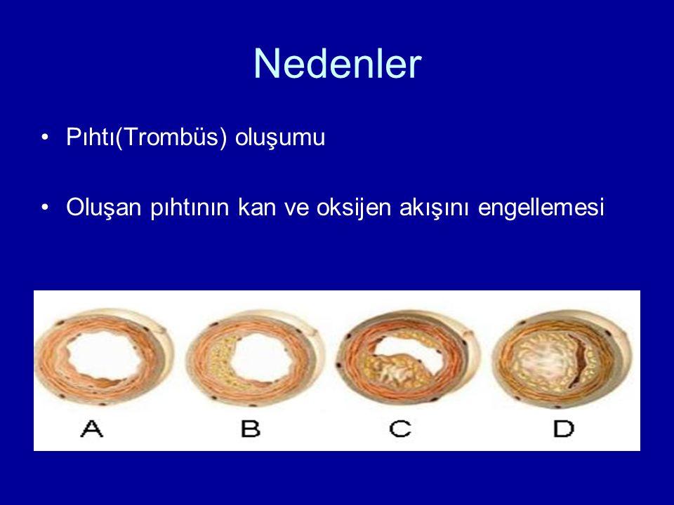 Nedenler Pıhtı(Trombüs) oluşumu Oluşan pıhtının kan ve oksijen akışını engellemesi