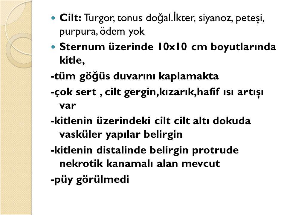 Cilt: Turgor, tonus do ğ al. İ kter, siyanoz, peteşi, purpura, ödem yok Sternum üzerinde 10x10 cm boyutlarında kitle, -tüm gö ğ üs duvarını kaplamakta