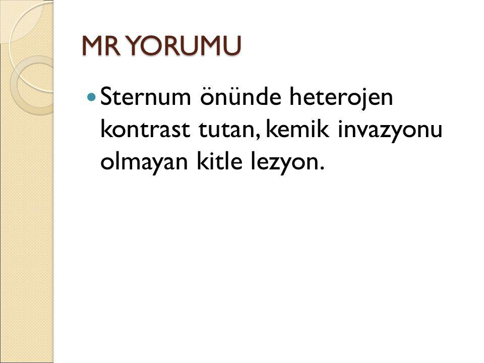 MR YORUMU Sternum önünde heterojen kontrast tutan, kemik invazyonu olmayan kitle lezyon.