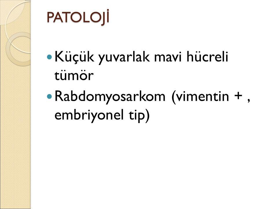 PATOLOJ İ Küçük yuvarlak mavi hücreli tümör Rabdomyosarkom (vimentin +, embriyonel tip)