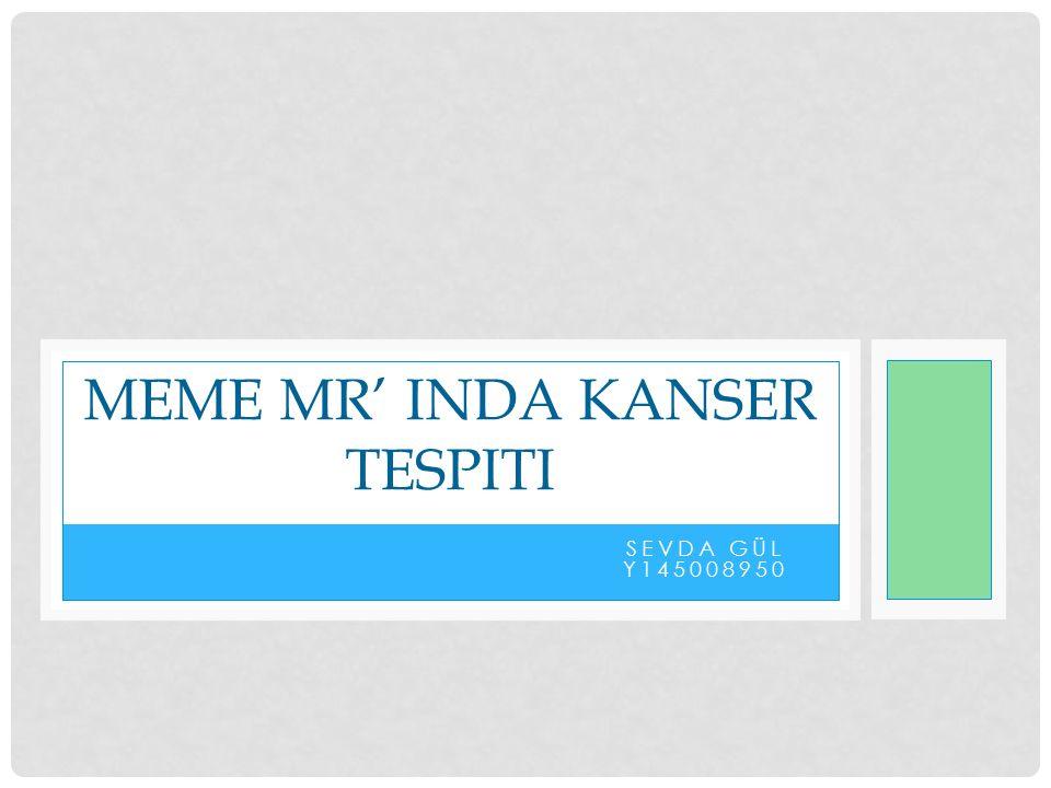 SEVDA GÜL Y145008950 MEME MR' INDA KANSER TESPITI