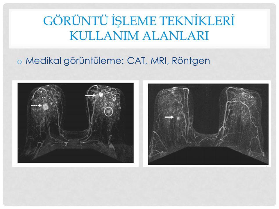 GÖRÜNTÜ İŞLEME TEKNİKLERİ KULLANIM ALANLARI o Medikal görüntüleme: CAT, MRI, Röntgen