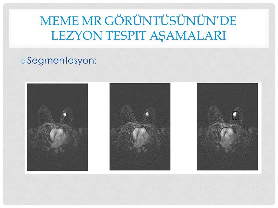 MEME MR GÖRÜNTÜSÜNÜN'DE LEZYON TESPIT AŞAMALARI o Segmentasyon:
