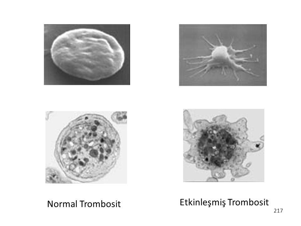 217 Normal Trombosit Etkinleşmiş Trombosit