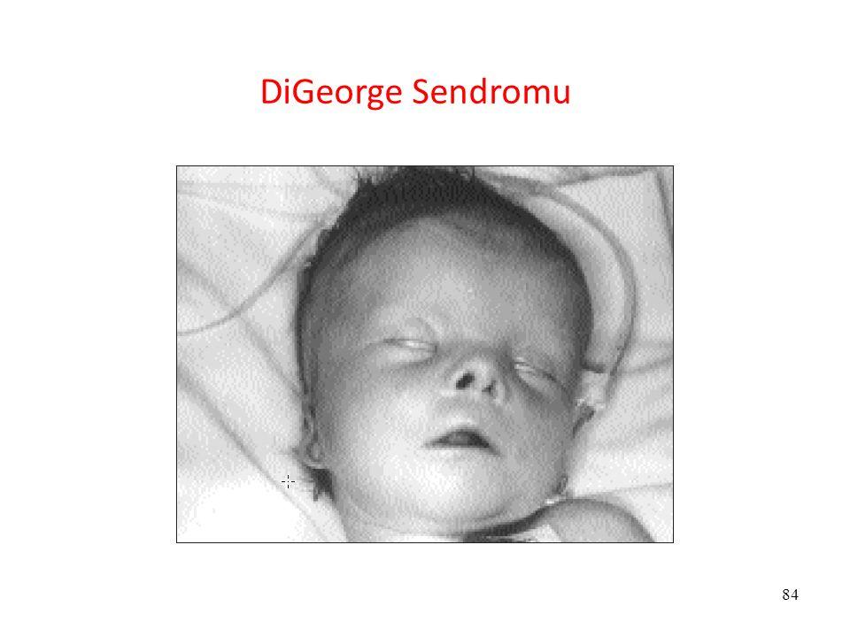 84 DiGeorge Sendromu