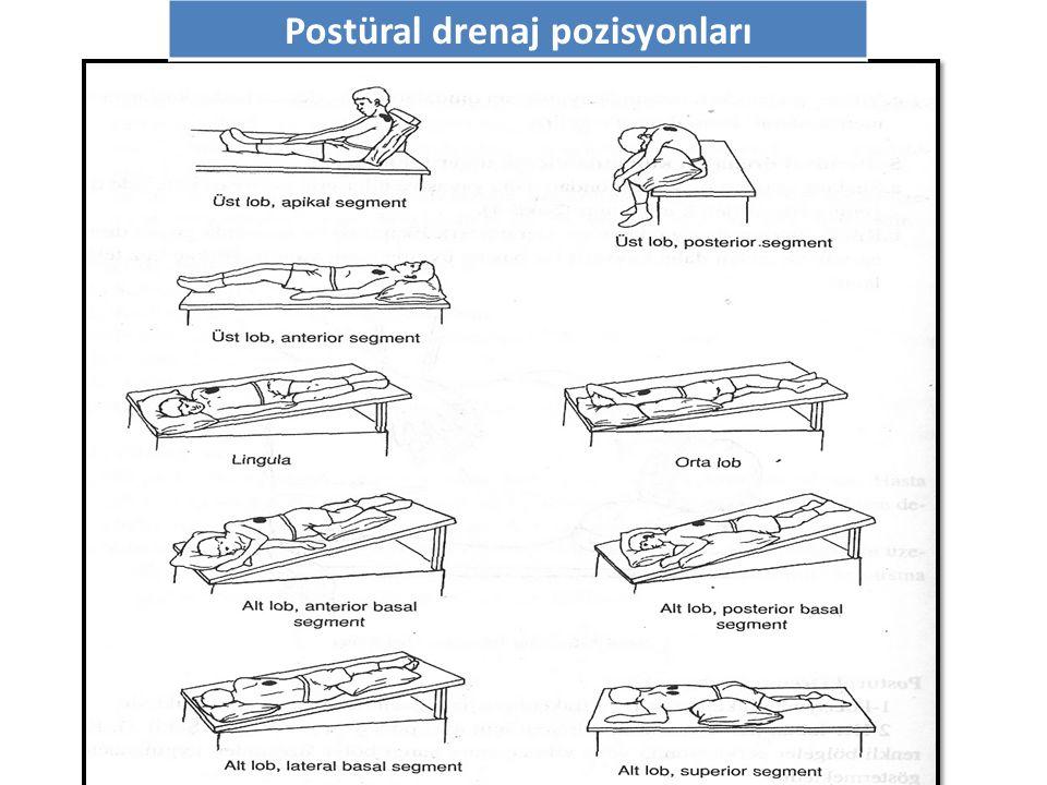 Postüral drenaj pozisyonları