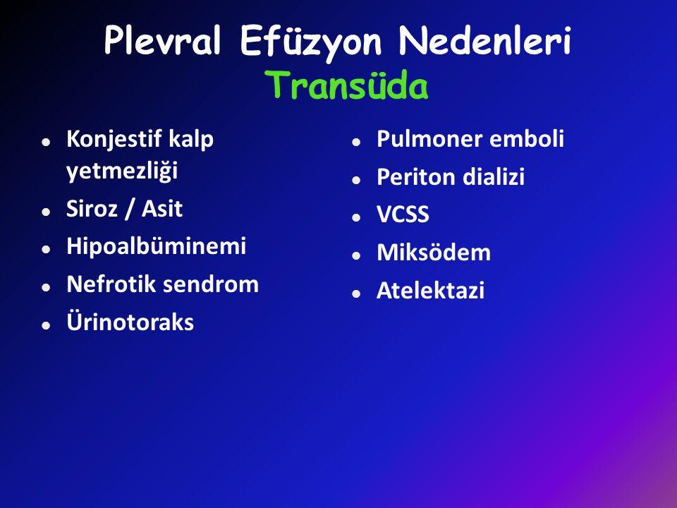 Plevral Efüzyon Nedenleri Transüda l Konjestif kalp yetmezliği l Siroz / Asit l Hipoalbüminemi l Nefrotik sendrom l Ürinotoraks l Pulmoner emboli l Periton dializi l VCSS l Miksödem l Atelektazi