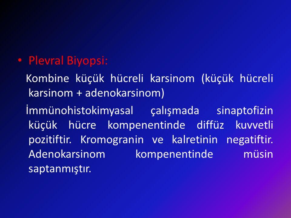 Plevral Biyopsi: Kombine küçük hücreli karsinom (küçük hücreli karsinom + adenokarsinom) İmmünohistokimyasal çalışmada sinaptofizin küçük hücre kompen