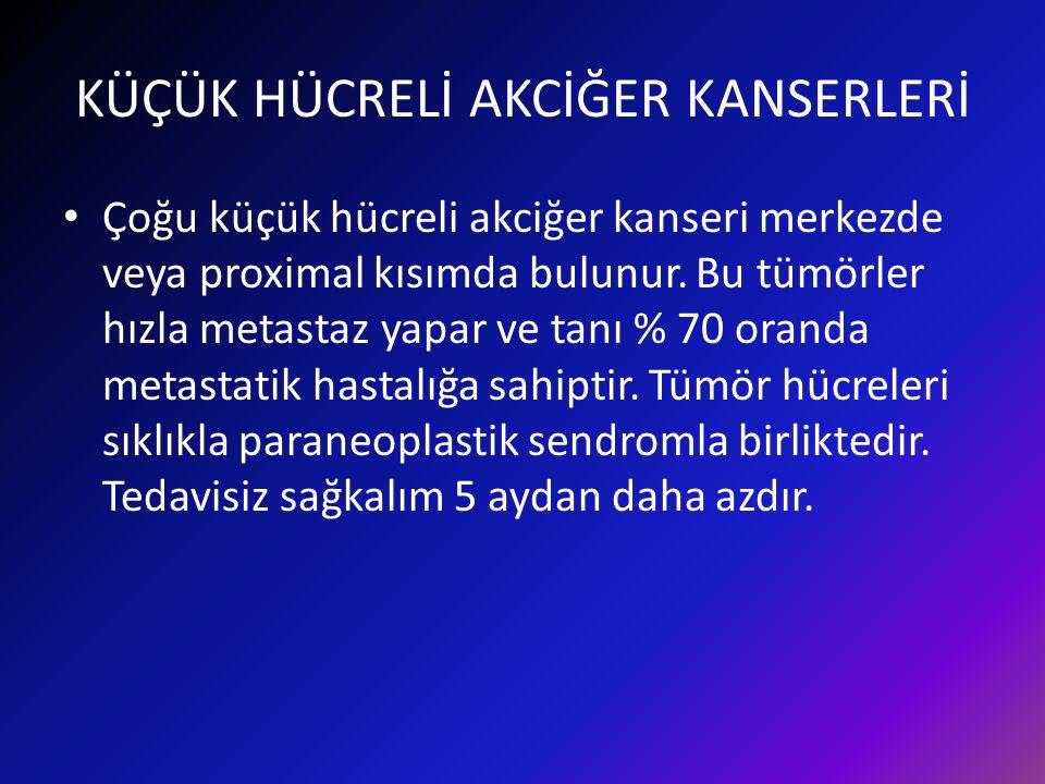 KÜÇÜK HÜCRELİ AKCİĞER KANSERLERİ Çoğu küçük hücreli akciğer kanseri merkezde veya proximal kısımda bulunur.