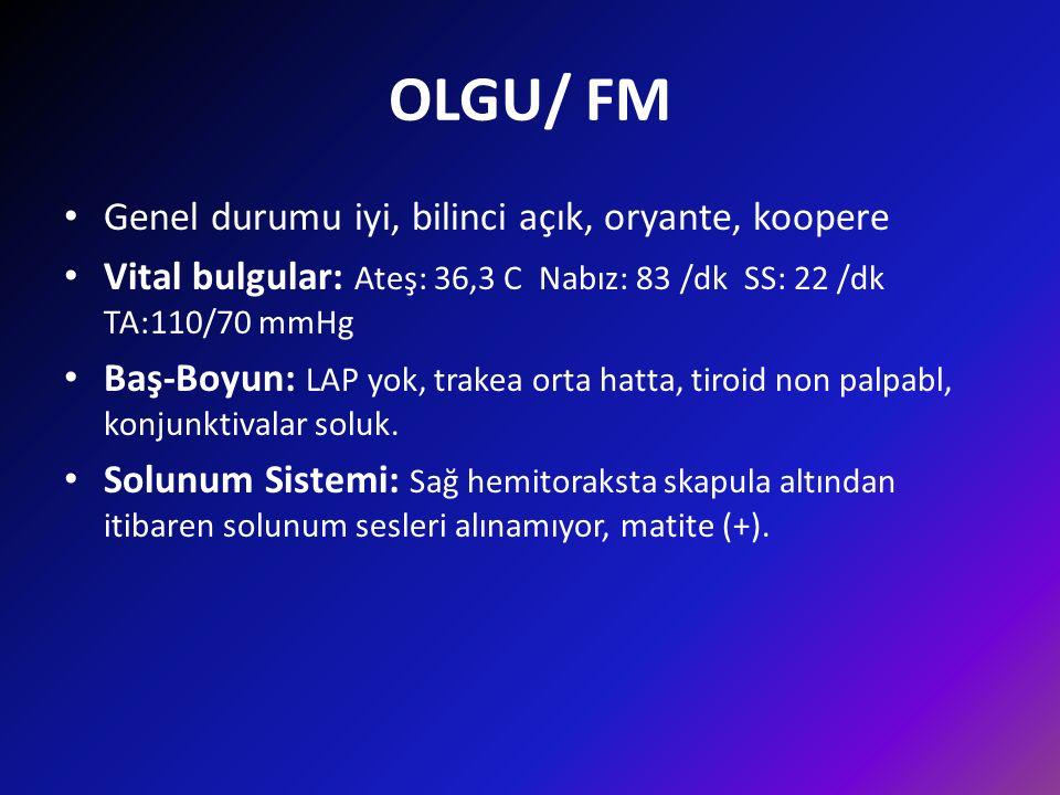 OLGU/ FM Genel durumu iyi, bilinci açık, oryante, koopere Vital bulgular: Ateş: 36,3 C Nabız: 83 /dk SS: 22 /dk TA:110/70 mmHg Baş-Boyun: LAP yok, trakea orta hatta, tiroid non palpabl, konjunktivalar soluk.