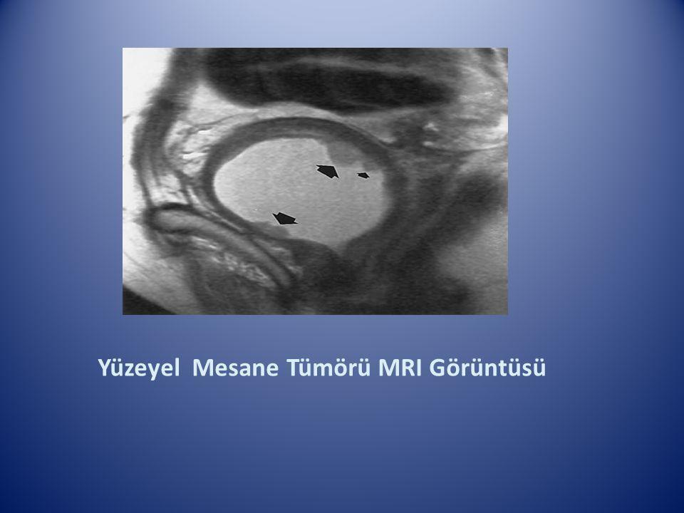 Yüzeyel Mesane Tümörü MRI Görüntüsü