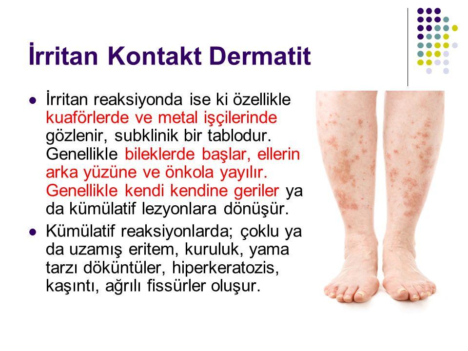 İrritan Kontakt Dermatit İrritan reaksiyonda ise ki özellikle kuaförlerde ve metal işçilerinde gözlenir, subklinik bir tablodur. Genellikle bileklerde
