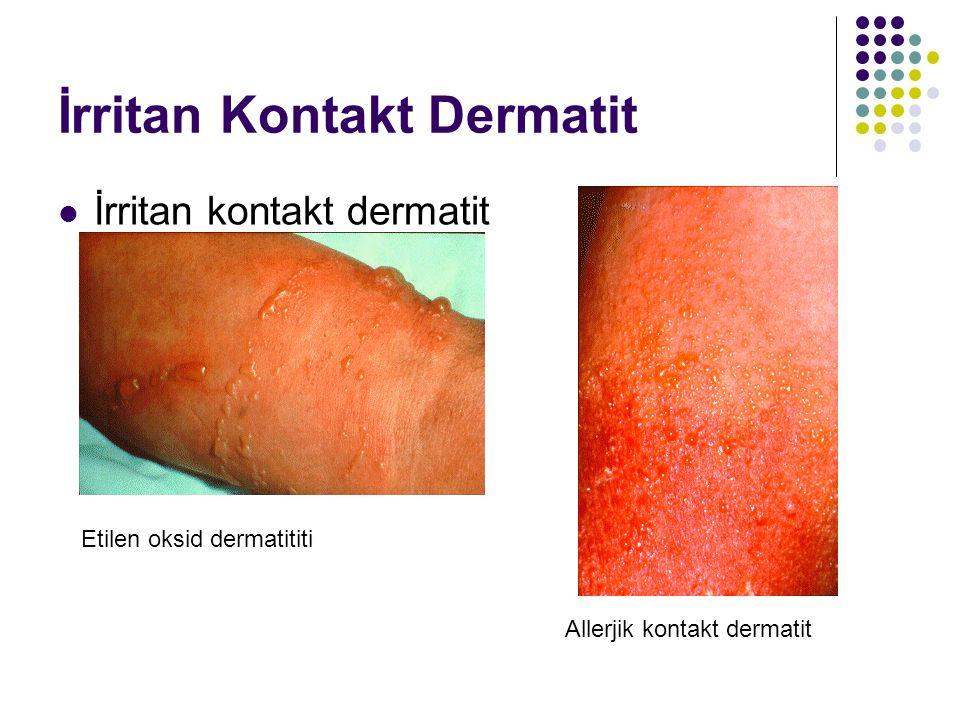 İrritan Kontakt Dermatit İrritan kontakt dermatit Etilen oksid dermatititi Allerjik kontakt dermatit