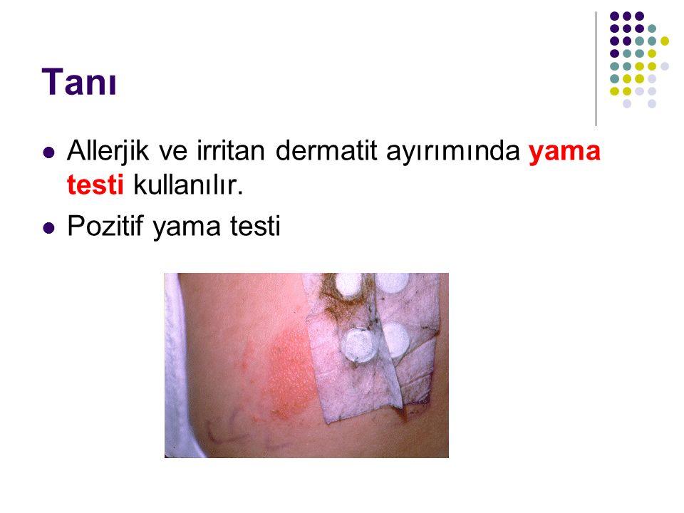 Tanı Allerjik ve irritan dermatit ayırımında yama testi kullanılır. Pozitif yama testi