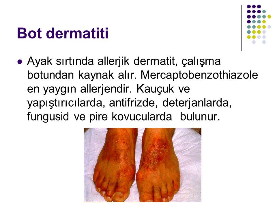 Bot dermatiti Ayak sırtında allerjik dermatit, çalışma botundan kaynak alır. Mercaptobenzothiazole en yaygın allerjendir. Kauçuk ve yapıştırıcılarda,