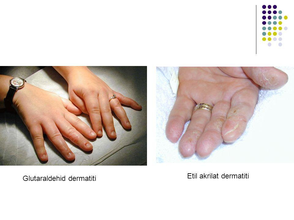 Glutaraldehid dermatiti Etil akrilat dermatiti