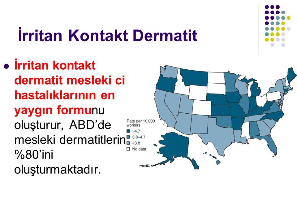 İrritan Kontakt Dermatit İrritan kontakt dermatit mesleki cilt hastalıklarının en yaygın formunu oluşturur, ABD'de mesleki dermatitlerin %80'ini oluşt