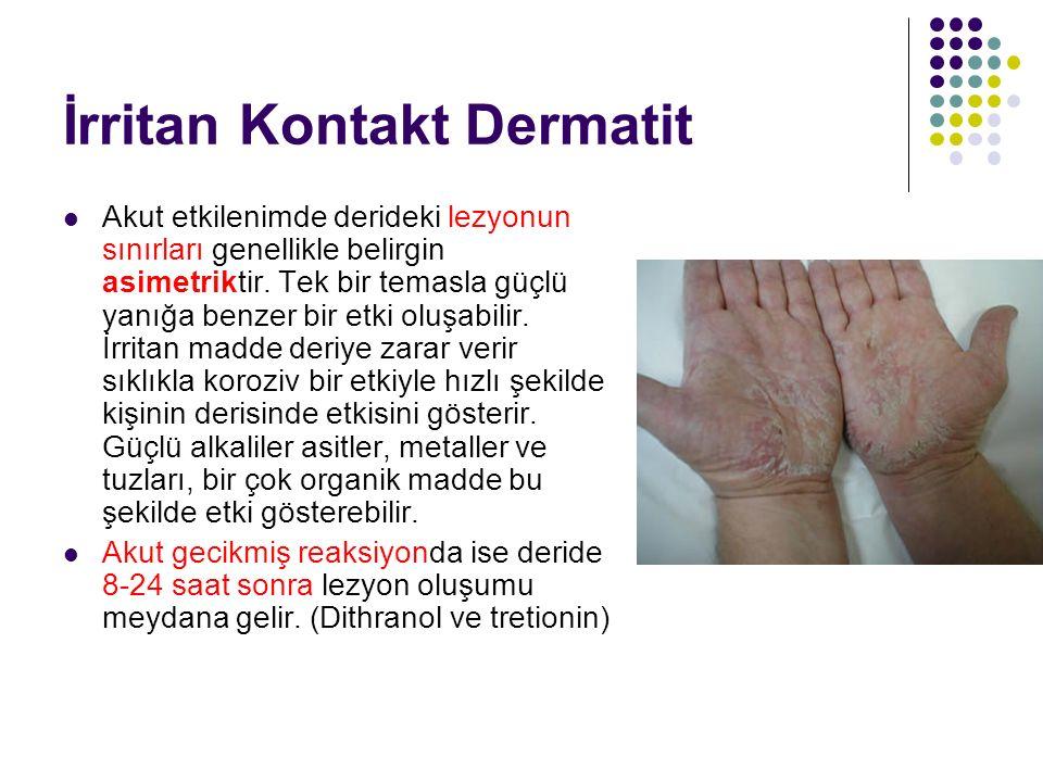 İrritan Kontakt Dermatit Akut etkilenimde derideki lezyonun sınırları genellikle belirgin asimetriktir. Tek bir temasla güçlü yanığa benzer bir etki o