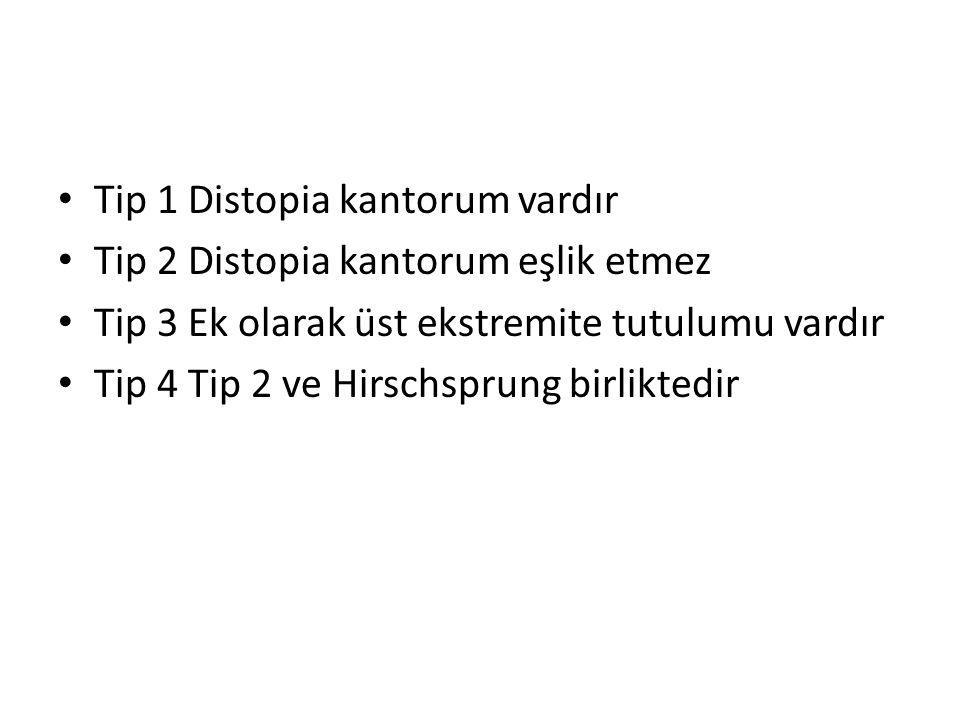 Tip 1 Distopia kantorum vardır Tip 2 Distopia kantorum eşlik etmez Tip 3 Ek olarak üst ekstremite tutulumu vardır Tip 4 Tip 2 ve Hirschsprung birliktedir