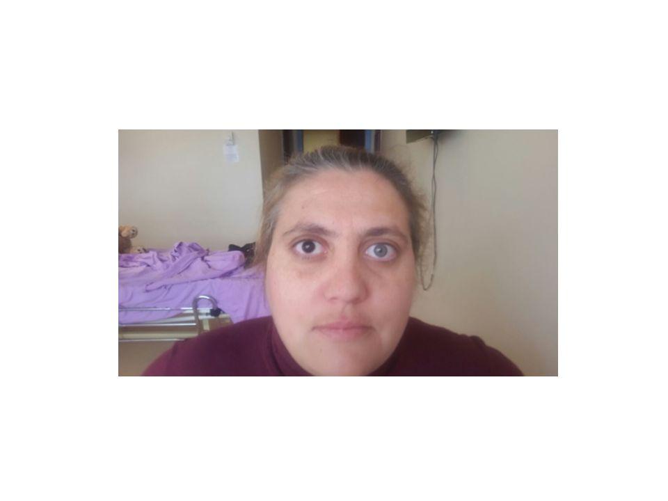 Anne başka pigmentasyon bozuklukları açısından sorgulandı.