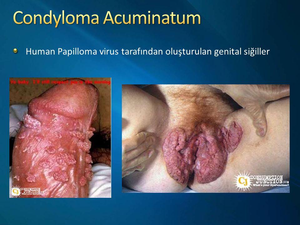 Human Papilloma virus tarafından oluşturulan genital siğiller