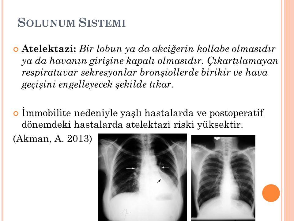 S OLUNUM S ISTEMI Atelektazi: Bir lobun ya da akciğerin kollabe olmasıdır ya da havanın girişine kapalı olmasıdır.