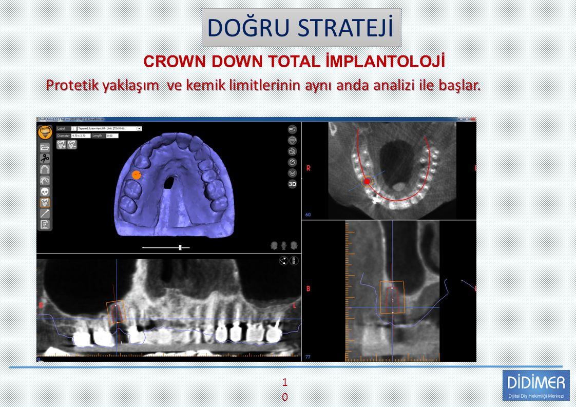 DOĞRU STRATEJİ CROWN DOWN TOTAL İMPLANTOLOJİ 10 Protetik yaklaşım ve kemik limitlerinin aynı anda analizi ile başlar.