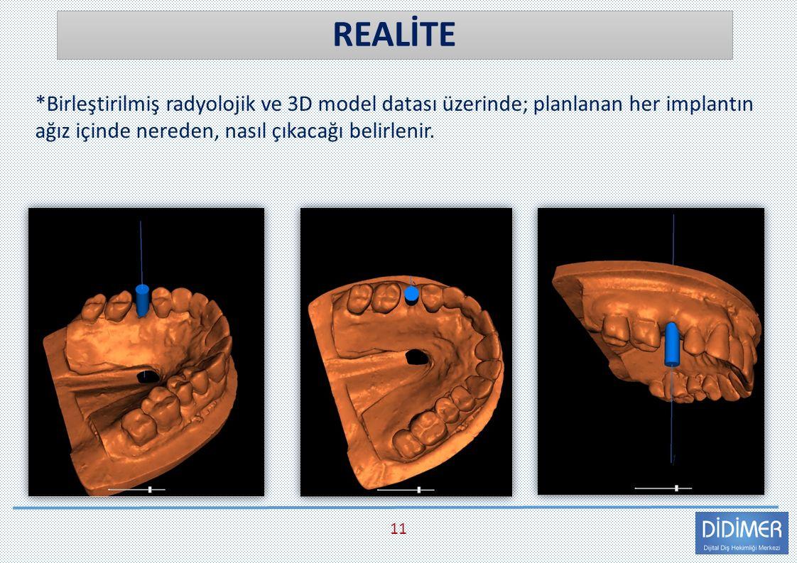 REALİTE 11 *Birleştirilmiş radyolojik ve 3D model datası üzerinde; planlanan her implantın ağız içinde nereden, nasıl çıkacağı belirlenir.