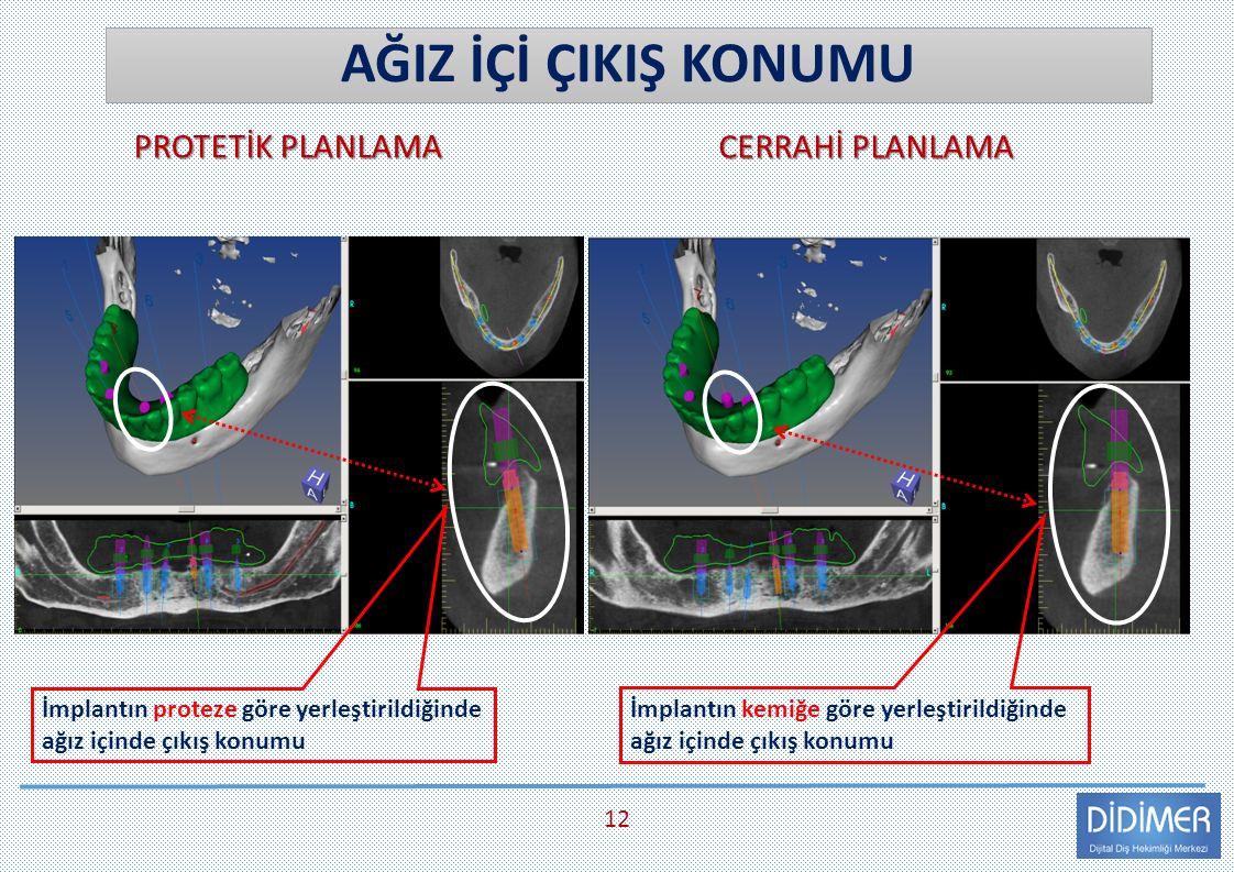 CERRAHİ PLANLAMA PROTETİK PLANLAMA AĞIZ İÇİ ÇIKIŞ KONUMU 12 İmplantın kemiğe göre yerleştirildiğinde ağız içinde çıkış konumu İmplantın proteze göre yerleştirildiğinde ağız içinde çıkış konumu