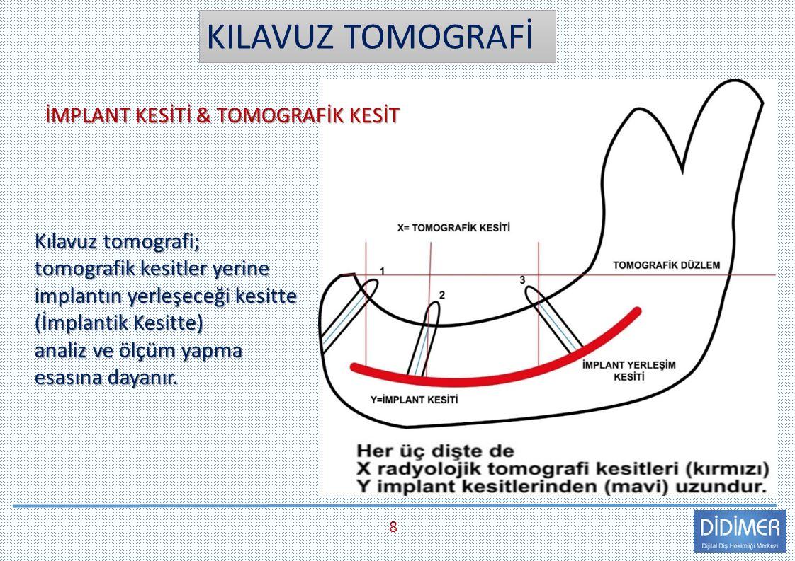 Kılavuz tomografi; tomografik kesitler yerine implantın yerleşeceği kesitte (İmplantik Kesitte) analiz ve ölçüm yapma esasına dayanır. KILAVUZ TOMOGRA