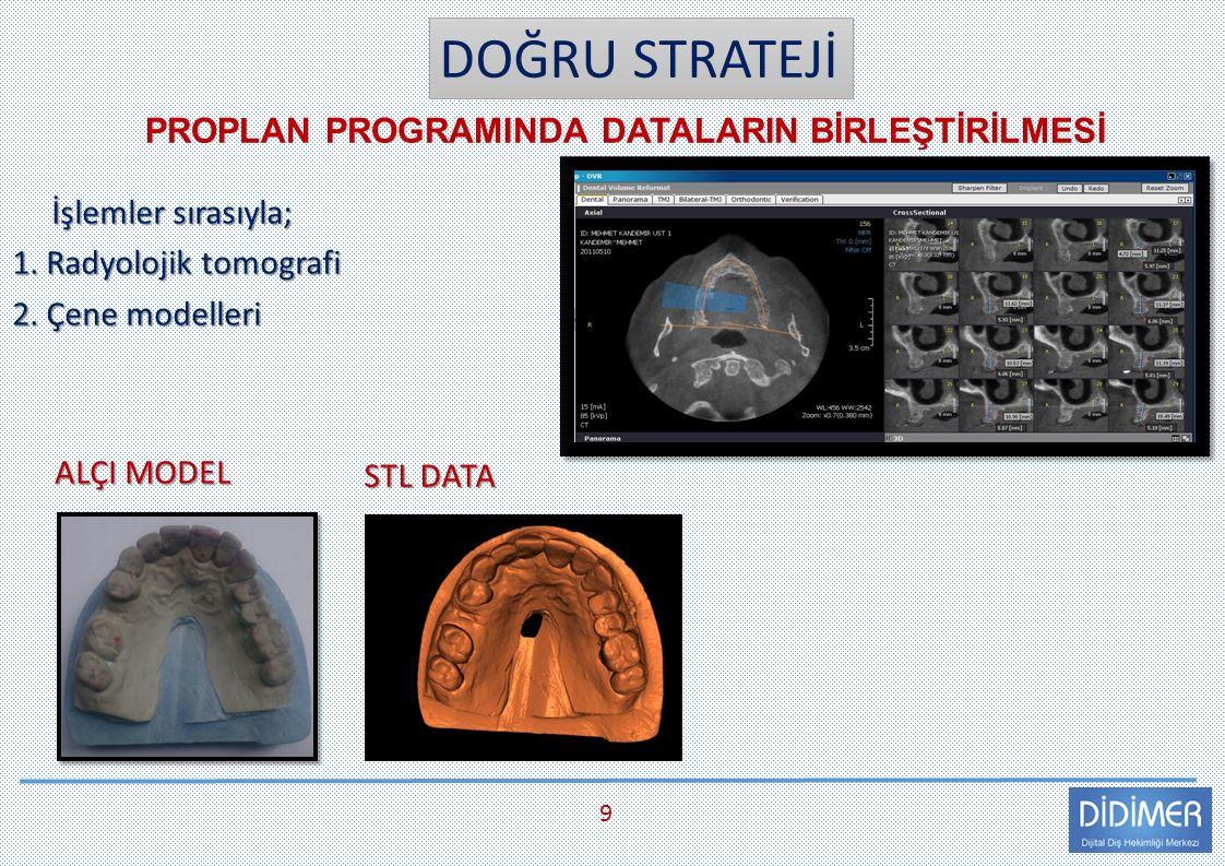 DOĞRU STRATEJİ İşlemler sırasıyla; İşlemler sırasıyla; 1. Radyolojik tomografi 2. Çene modelleri PROPLAN PROGRAMINDA DATALARIN BİRLEŞTİRİLMESİ 9 ALÇI