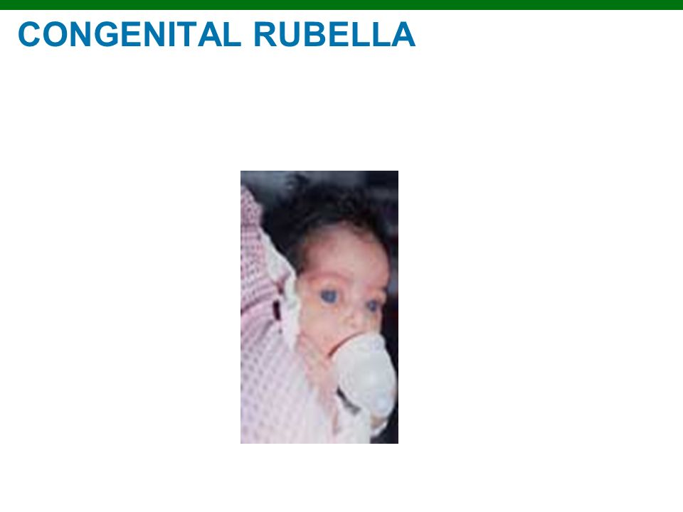 Copyright © 2010 Pearson Education, Inc. CONGENITAL RUBELLA