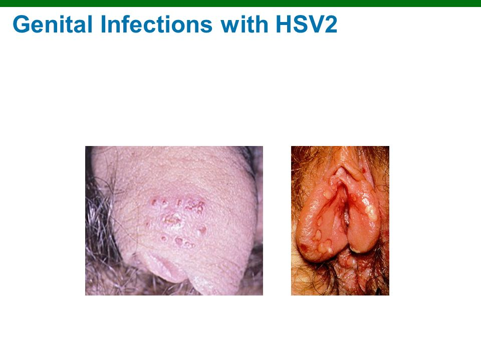Copyright © 2010 Pearson Education, Inc. Genital Infections with HSV2