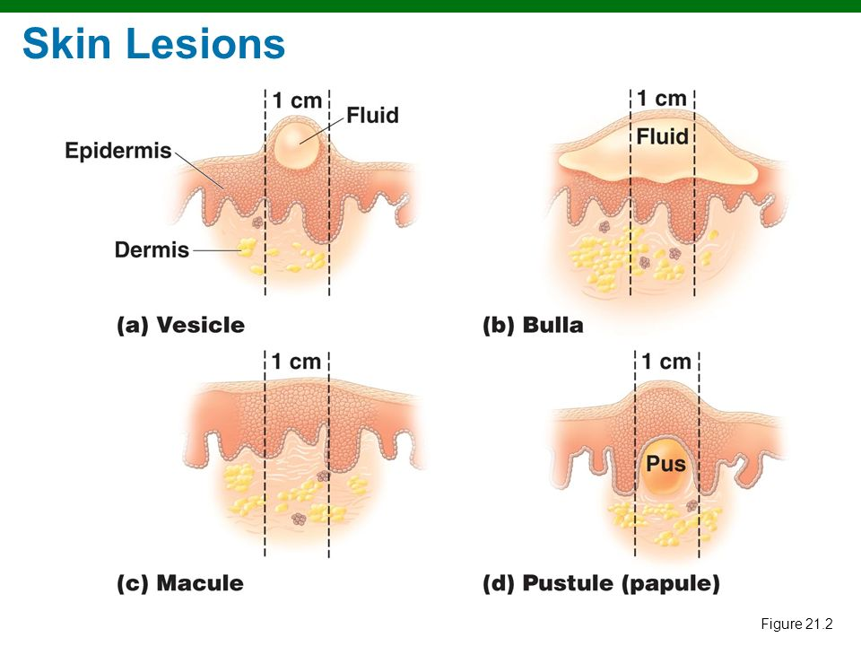 Copyright © 2010 Pearson Education, Inc. Skin Lesions Figure 21.2