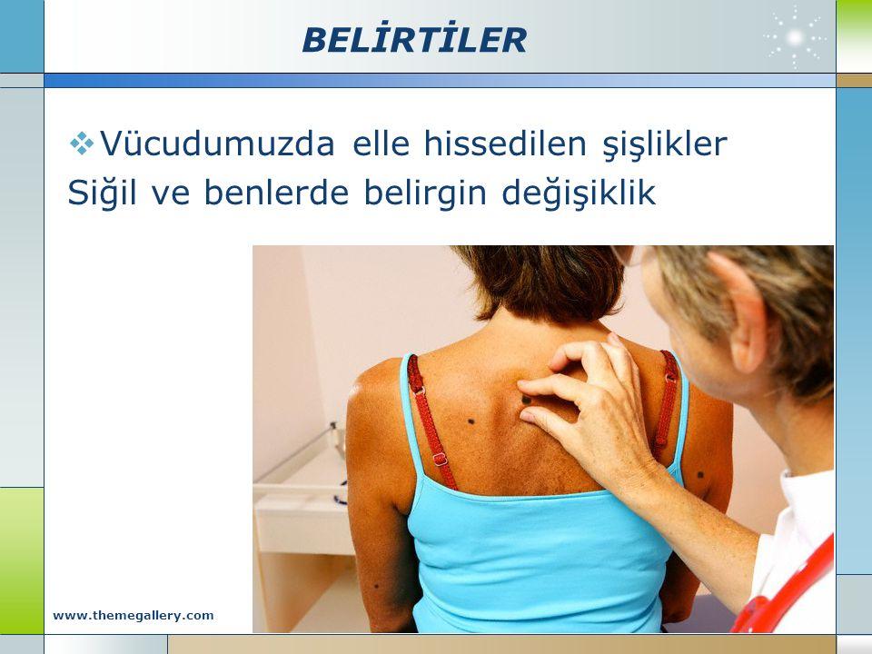 BELİRTİLER  Vücudumuzda elle hissedilen şişlikler Siğil ve benlerde belirgin değişiklik Company Logo www.themegallery.com