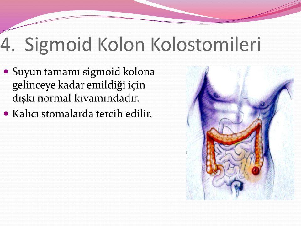 4.Sigmoid Kolon Kolostomileri Suyun tamamı sigmoid kolona gelinceye kadar emildiği için dışkı normal kıvamındadır.