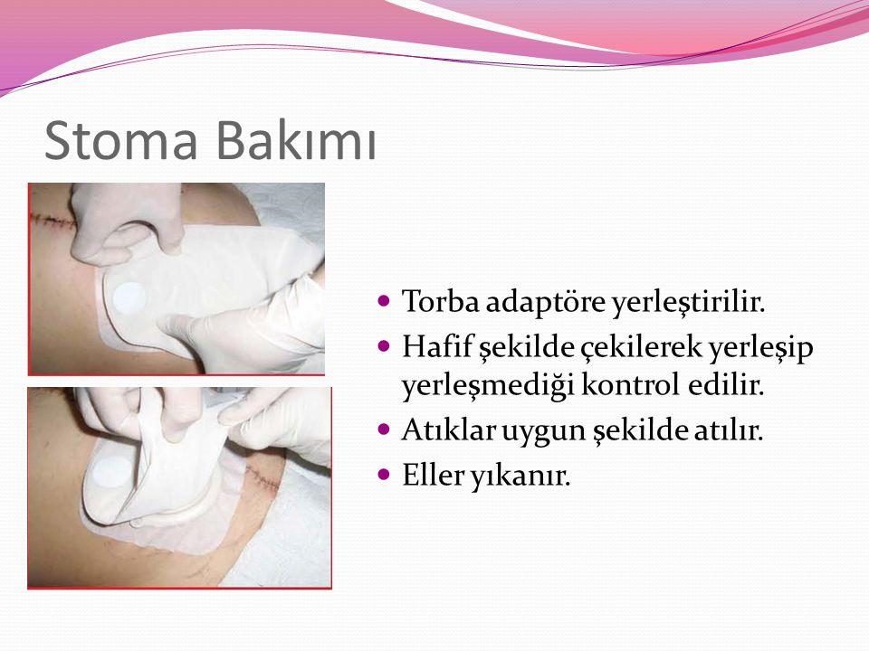 Stoma Bakımı Torba adaptöre yerleştirilir.