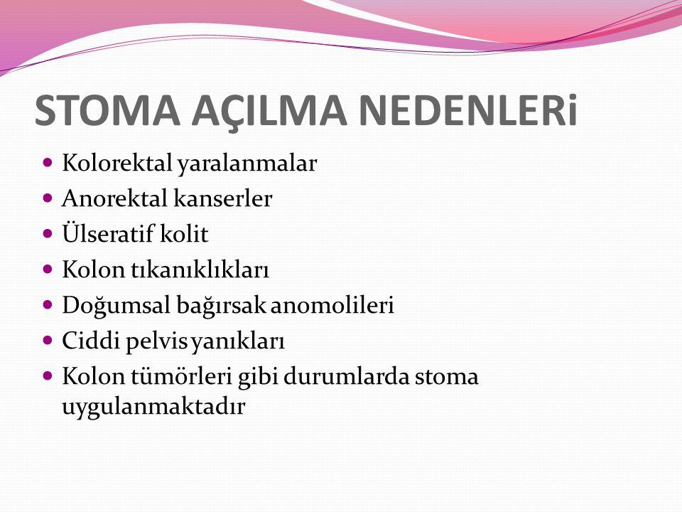 STOMA AÇILMA NEDENLERi Kolorektal yaralanmalar Anorektal kanserler Ülseratif kolit Kolon tıkanıklıkları Doğumsal bağırsak anomolileri Ciddi pelvis yanıkları Kolon tümörleri gibi durumlarda stoma uygulanmaktadır