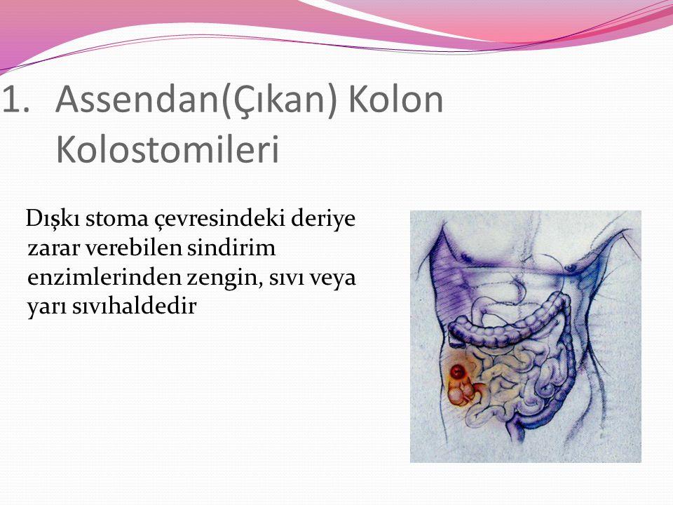 1.Assendan(Çıkan) Kolon Kolostomileri Dışkı stoma çevresindeki deriye zarar verebilen sindirim enzimlerinden zengin, sıvı veya yarı sıvıhaldedir