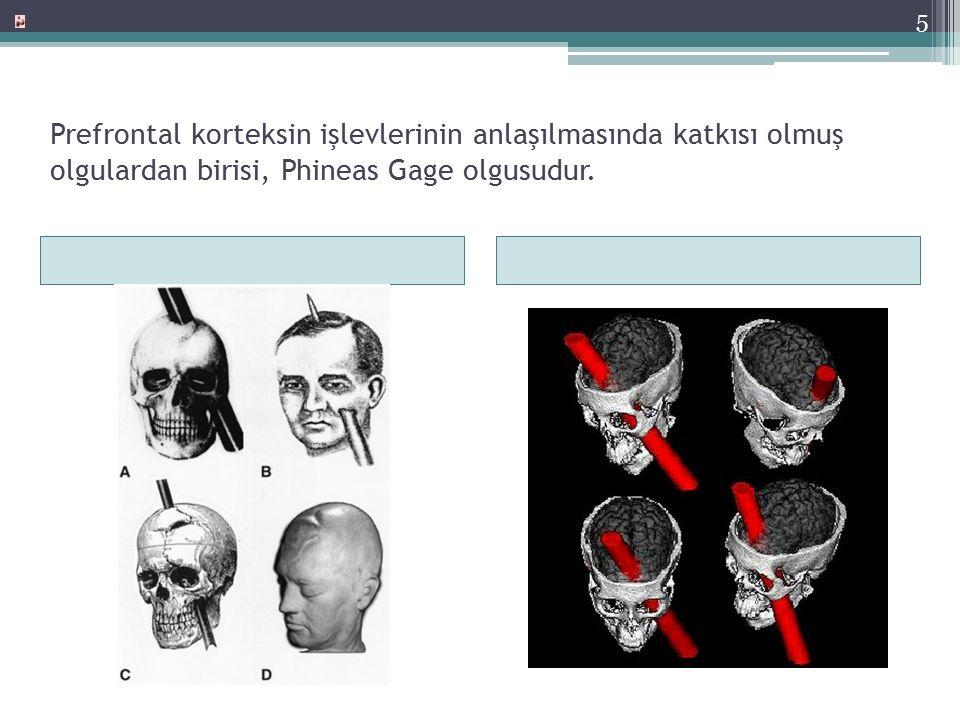 Prefrontal Korteks-4 Bir demiryolu işçisi olan Phineas Gage'nin frontal korteksine bir demir çubuğu girmiş ve bu kaza sonrası belirgin kişilik değişiklikleri gözlenmiştir.