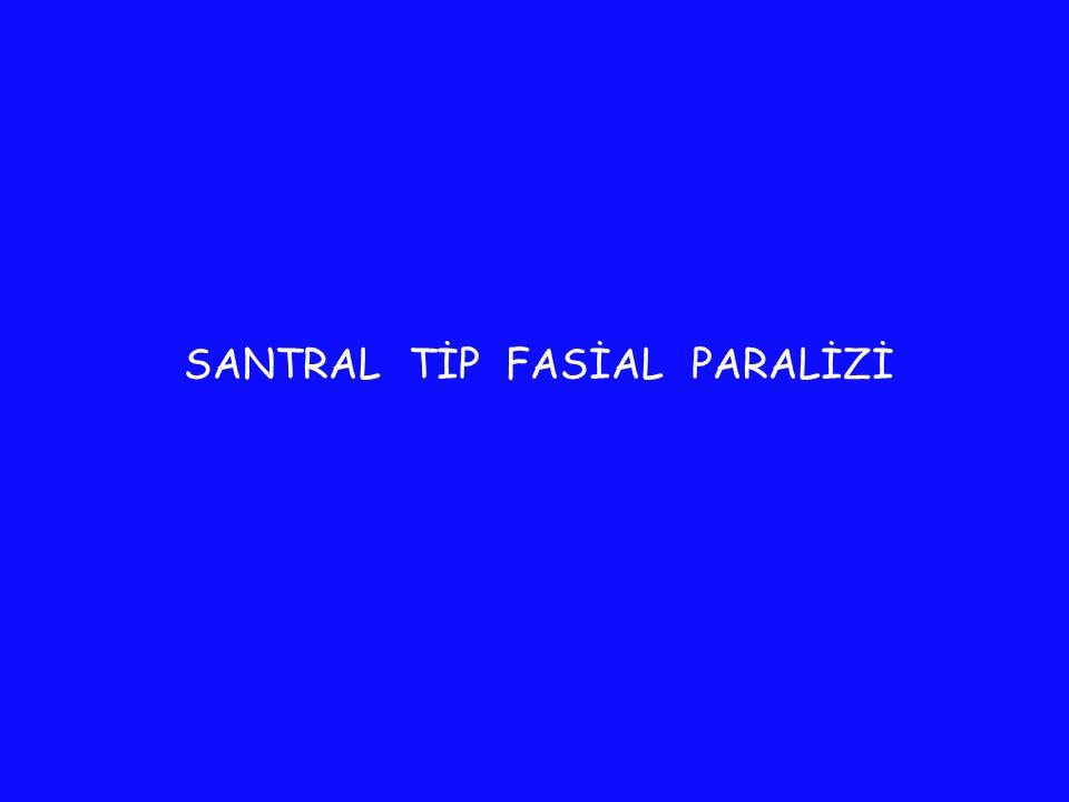SANTRAL TİP FASİAL PARALİZİ