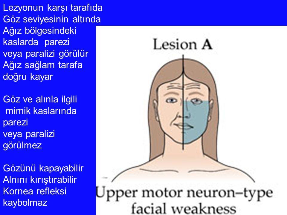 Lezyonun karşı tarafıda Göz seviyesinin altında Ağız bölgesindeki kaslarda parezi veya paralizi görülür Ağız sağlam tarafa doğru kayar Göz ve alınla i