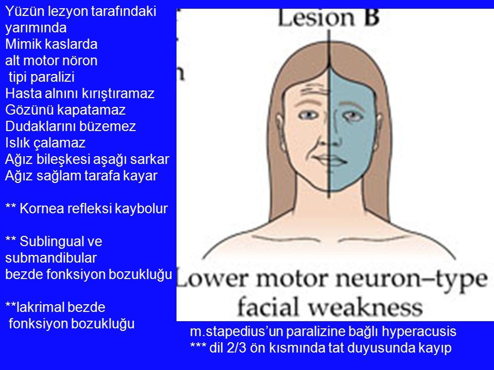 Yüzün lezyon tarafındaki yarımında Mimik kaslarda alt motor nöron tipi paralizi Hasta alnını kırıştıramaz Gözünü kapatamaz Dudaklarını büzemez Islık ç