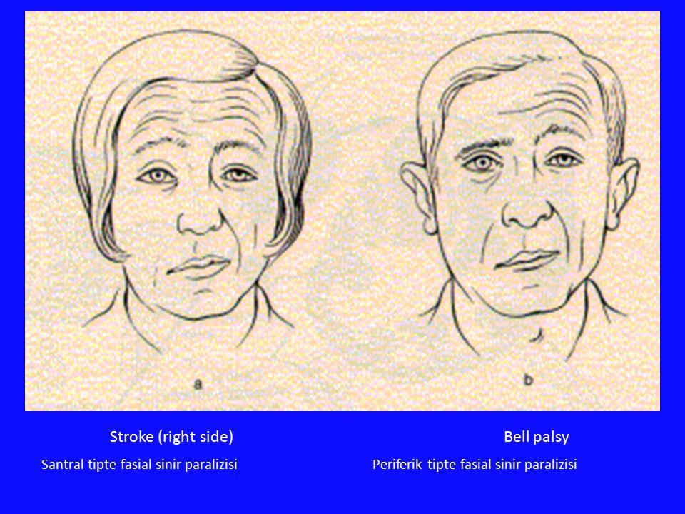 Bell palsyStroke (right side) Santral tipte fasial sinir paralizisiPeriferik tipte fasial sinir paralizisi