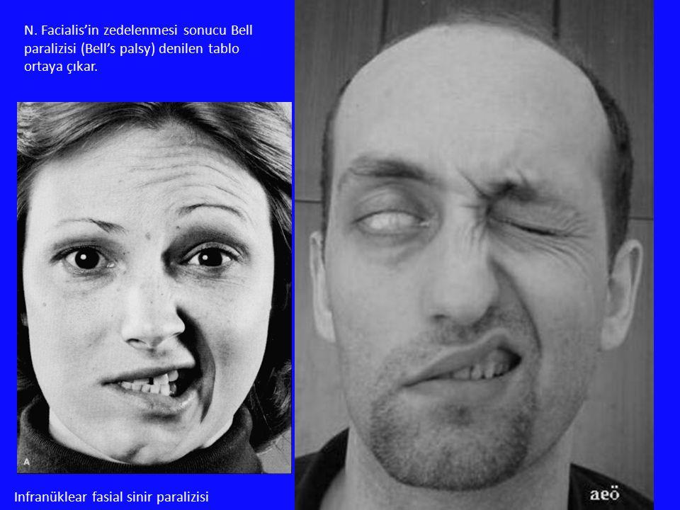 N. Facialis'in zedelenmesi sonucu Bell paralizisi (Bell's palsy) denilen tablo ortaya çıkar. Infranüklear fasial sinir paralizisi