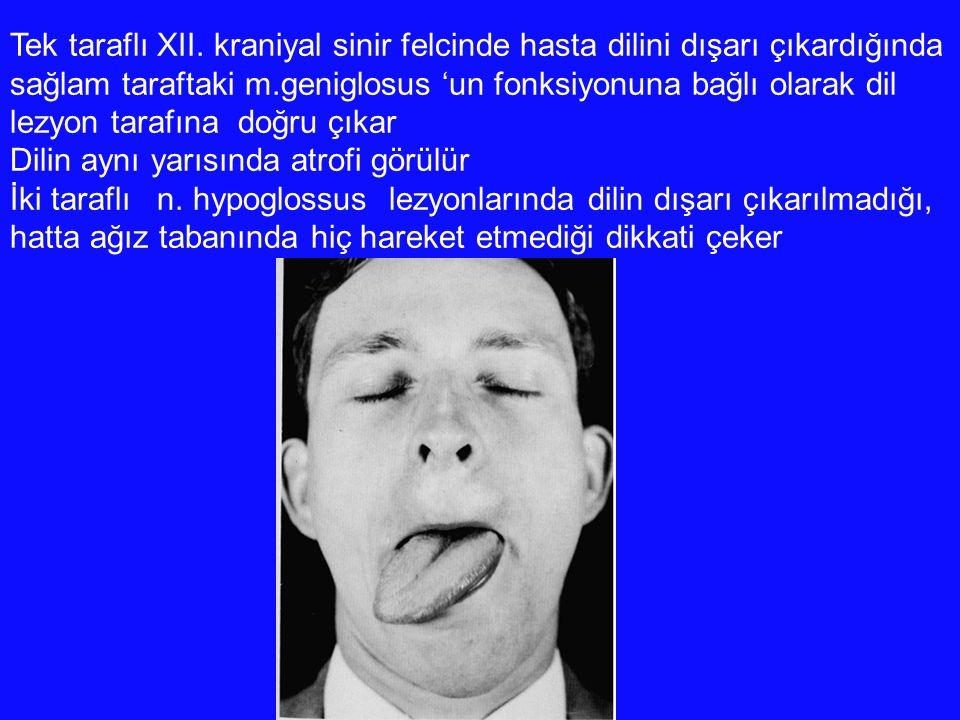 Tek taraflı XII. kraniyal sinir felcinde hasta dilini dışarı çıkardığında sağlam taraftaki m.geniglosus 'un fonksiyonuna bağlı olarak dil lezyon taraf