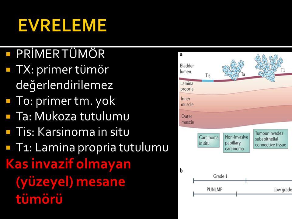  PRİMER TÜMÖR  TX: primer tümör değerlendirilemez  T0: primer tm. yok  Ta: Mukoza tutulumu  Tis: Karsinoma in situ  T1: Lamina propria tutulumu