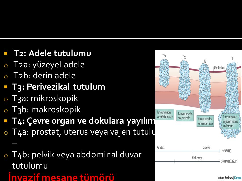  T2: Adele tutulumu o T2a: yüzeyel adele o T2b: derin adele  T3: Perivezikal tutulum o T3a: mikroskopik o T3b: makroskopik  T4: Çevre organ ve doku