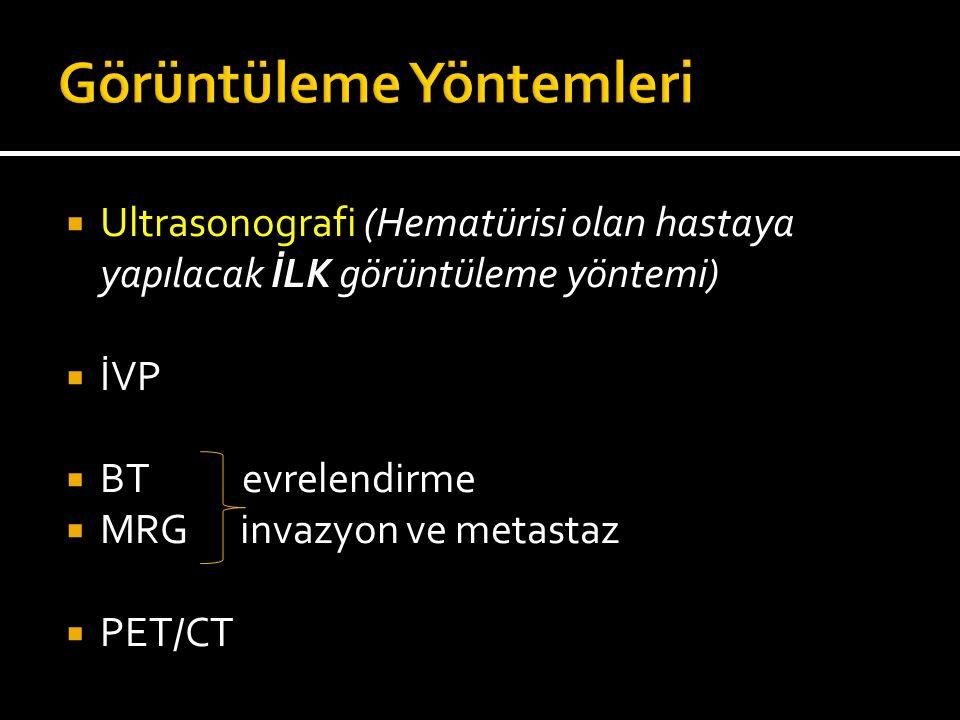  Ultrasonografi (Hematürisi olan hastaya yapılacak İLK görüntüleme yöntemi)  İVP  BT evrelendirme  MRG invazyon ve metastaz  PET/CT