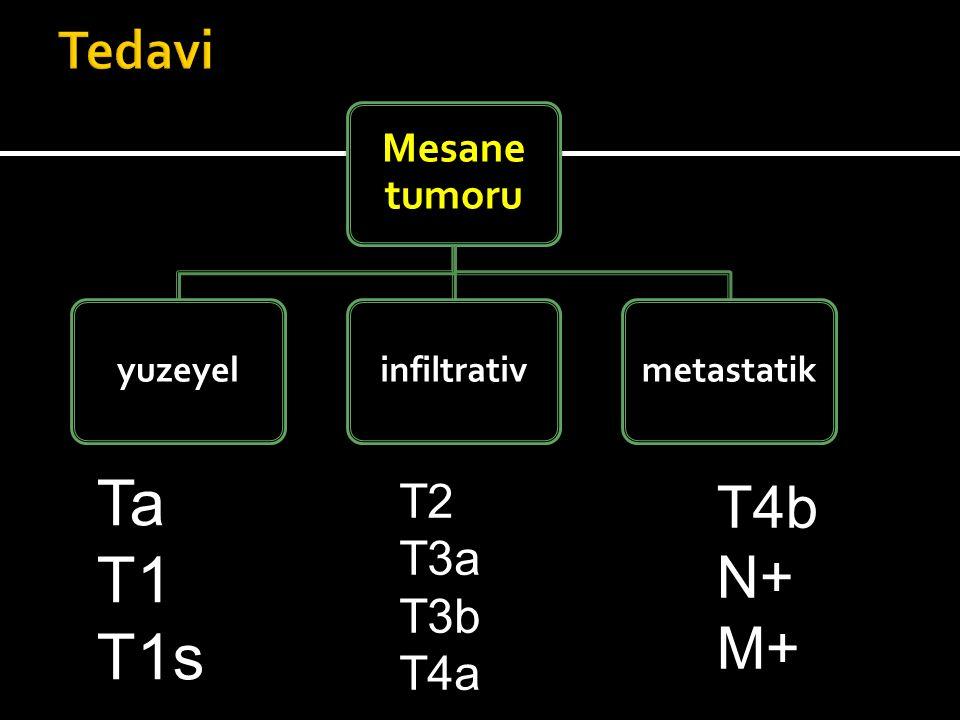 Mesane tumoru yuzeyelinfiltrativmetastatik Ta T1 T1s T2 T3a T3b T4a T4b N+ M+
